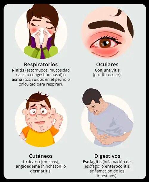 SÍNTOMAS PRINCIPALES DE LA ALERGIA: respiratorios, oculares, cutáneos y  digestivos. | Alergias, Esofagitis, Alergica
