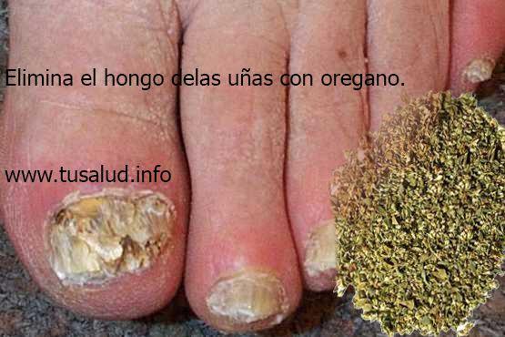 Los hongos en las uñas son una infección que preocupa a