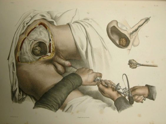 Traité complet d'anatomie de l'homme (1866-1871), 2nd ed. by Bourgery, Bernard, and Jacob  This instrument (used prior to the discovery of anesthesia), initially caught the stone with a claw, drilled it to smaller pieces, and then removed the smaller fragments by the same claw: