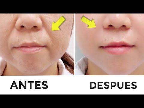 Haga Esto 2 Dias Seguidos Y Quita Las Arrugas De Tu Boca Con Exito Total Aangie Youtube Recetas De Belleza Tips De Belleza Naturales Arrugas