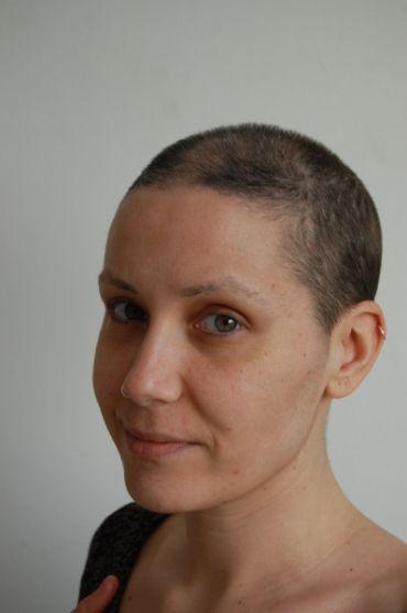 Esta chica se fotografió al terminar el tratamiento, todas las semanas, mostrando cómo va creciendo el pelo. ¡Comprobado, crece y crece!