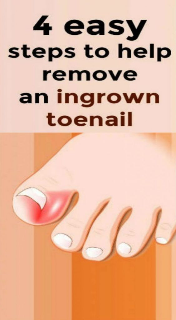 An ingrown toenail is a quite common but not that pleasant condition. What is more, it is so easy to influence it in a wrong way. The thing is that the causes for ingrown toenail are more than various, starting with the poor trimming and ending with some repeated activities that have an impact on your toes.