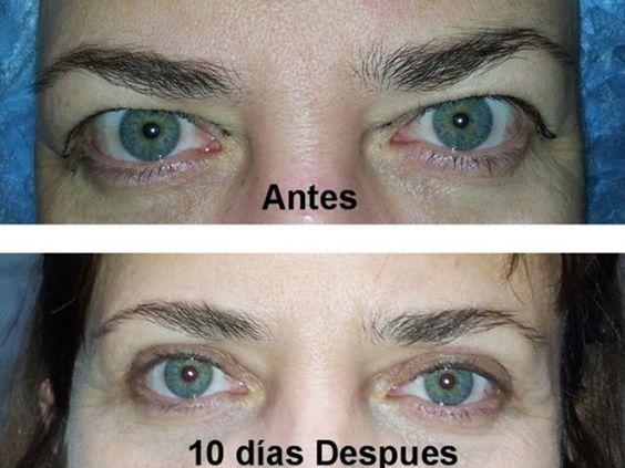 Antes y después de la cirugía de parpados, #blefaroplastia