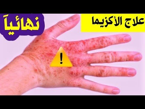 هل الاكزيما مرض معدي تعرف على علاج الاكزيما نهائيآ في اسبوع وصفه طبيعيه مجربه Youtube Thumbs Up
