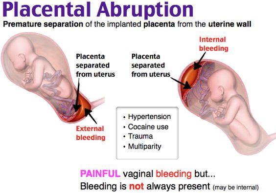 painful vaginal bleeding and evidence of fetal distress in the third trimester. The fundus often is tender to palpation, and pain occurs between contractions. Bleeding may be completely or partially concealed or may be bright, dark, or intermixed with amniotic fluid: