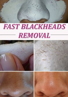 Get Rid of Blackheads in 10 Minutes      Ingredients: 1 tablespoon milk; 1 tablespoon gelatin powder. Put themix in the microwave for 10 seconds. Let it to cool a little then apply it on your nose anymore. After 10 minutes take it off from your nose .