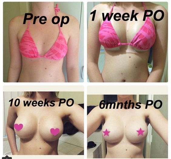 Effective? breast augumentation b cup something and