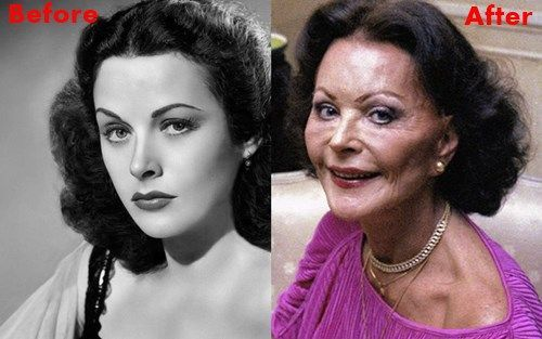 Hedy Lamarr Plastic Surgery Did Have