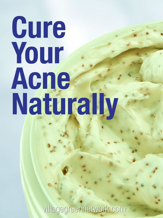 Cure Your Acne Naturally / http://villagegreennetwork.com/cure-acne-naturally/