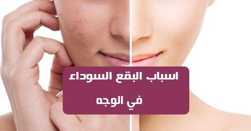 تعد البقع السوداء في الوجه من الامور التي تصيب النساء بكثرة وذلك بسبب الإفراط في إنتاج الميلانين وهو مكون كيميائي مسؤول عن لون البشرة عندما ينتج ال Okay Gesture