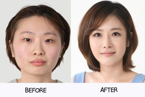 Asian nose job before and after