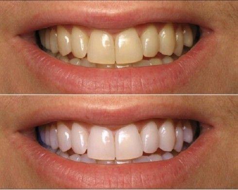 Một hàm răng tráng sáng và nụ cười tươi chính là điều làm nên vẻ đẹp của mỗi người. Thế nhưng, nếu màu của hàm răng không được như ý sẽ khiến cho bạn mất tự tin khi thể hiện nụ cười với người đối diện. Có khá nhiều nguyên nhân dẫn đến sự biến …