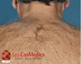 Les CosMedics is a best skin care clinic in Delhi, offers you affordable treatments of excessive hair growth, unwanted hair and laser hair removal as well.