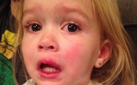 20 momentos em que você já se sentiu a Chloe Levou um tombo...