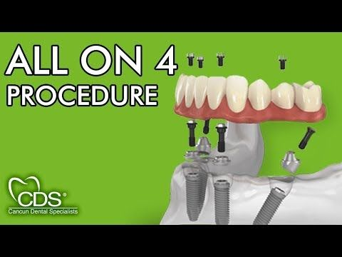All On 4 All On 6 Fixed Hybrid Dentures Prettau Superstructure Quality Patient Information Regarding Getting Dental Specialist Dental Implants Cost Dental
