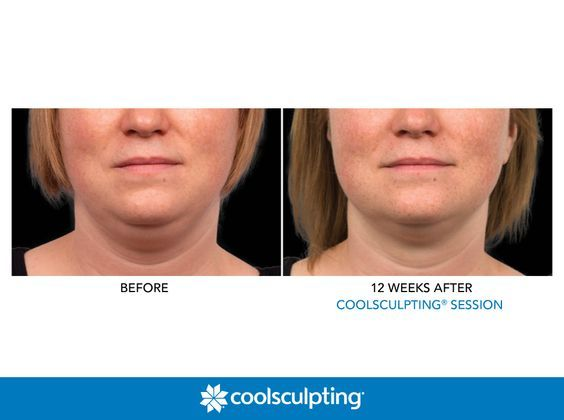 Pin On Coolsculpting Specials Sparks