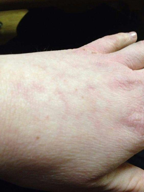 100+ Mottled Skin Fibromyalgia HD Wallpapers – My Sweet Home