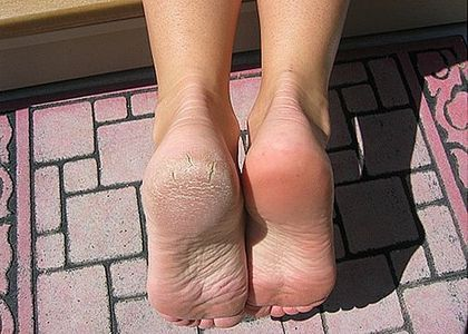 How to get dry skin off feet!