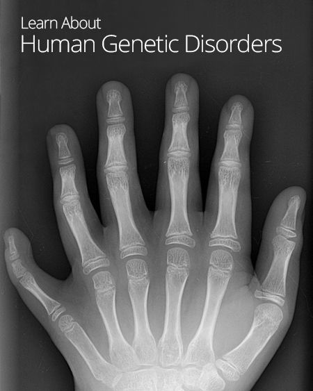 Worksheets Human Genetic Disorders Worksheet genetic disorder disorders and genetics on pinterest human disorders