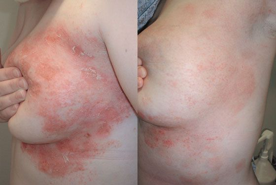 An Exploratory Genetic Study in Participants With Psoriasis 1