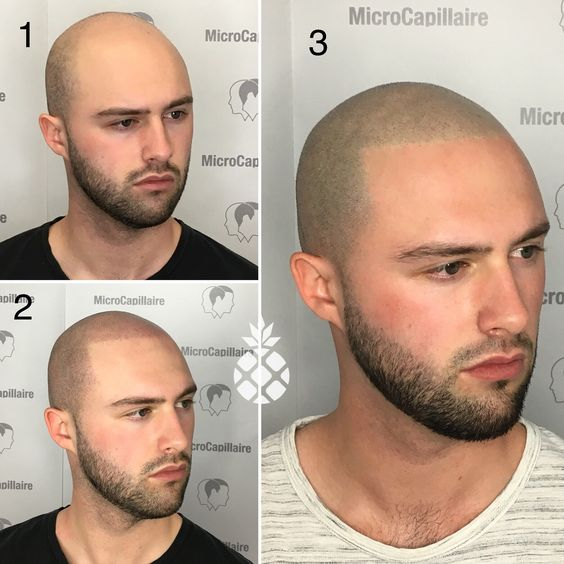 Cosmetic tattoo Scalp Micropigmentation Micropigmentation capillaire Hair loss solution Hair tattoo Head tattoo Tattoo cheveux