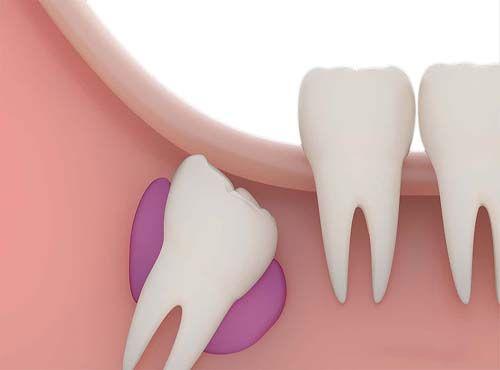 كم عدد أسنان الإنسان البالغ Wisdom Tooth Extraction Tooth Extraction Aftercare Tooth Extraction