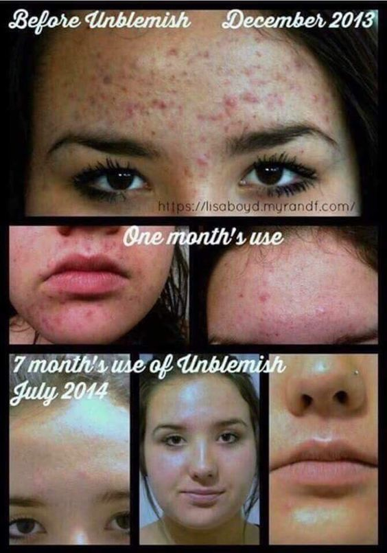 Rodan + Fields Unblemish Regimen is for acne and post acne marks.  Take control of your skin.  60 day money back guarantee.  Message me on pinterest @ R+Fskincare101.