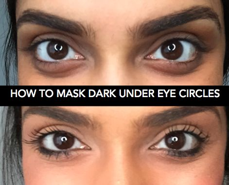 You Won't Believe This Crazy Trick to Get Rid of Dark ...
