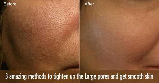 Are You Curious To Know How To Shrink Large Pores Or Reduce Pore Size Many People End Up Using Products Or Treatments Smooth Skin Soft Smooth Skin Skin Pores