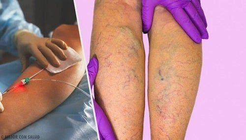 Dureri la picioare cu diabet plus vene varicoase