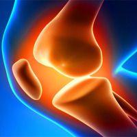 OSTEOARTRITE E DIABETES TIPO 2 É uma doença comum, e tende a se manifestar em mulheres, pessoas idosas e obesas,