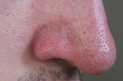 limpiar poros nariz hombre