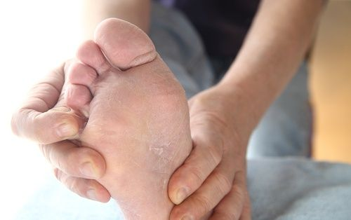 Грибковые инфекции на ногах, или микоз, - это очень распространенное явление…