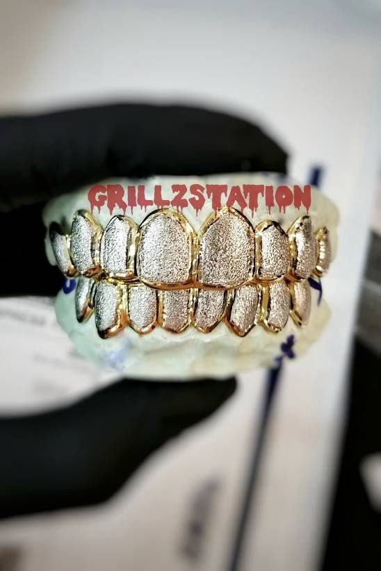 Custom Diamond Dust Grillz With Solid Frame 925 Silver Etsy Gold Grillz Real Gold Jewelry Diamond Grillz