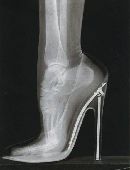 x-ray of feet in heels