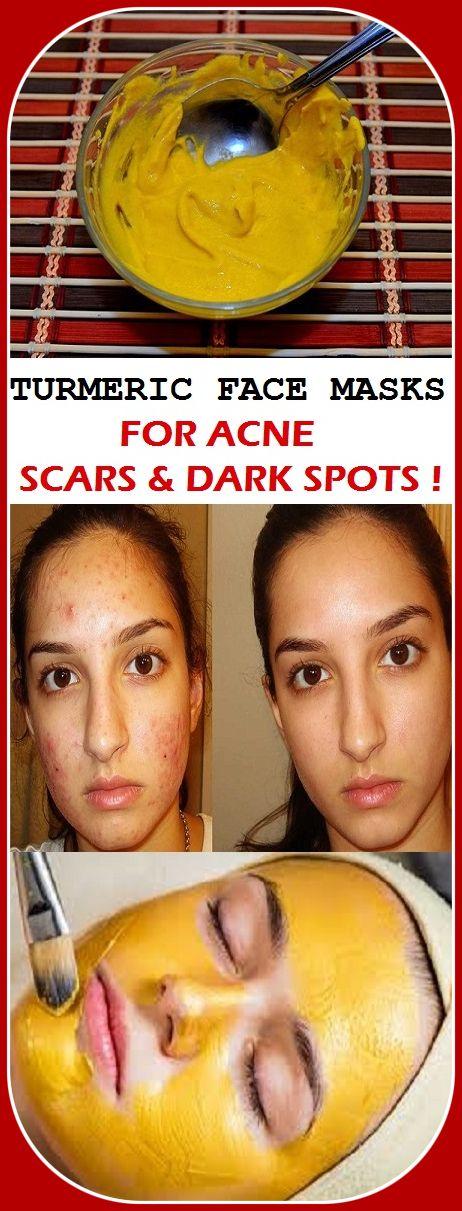 TURMERIC FACE MASKS FOR ACNE SCARS & DARK SPOTS