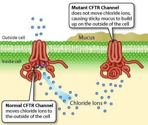 Cystic fibrosis CFTR gene on chromosomse 7