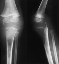 #Bone #Tumor #Cancer :- A tumor is a lump or mass of tissue that forms when cells divide uncontrollably