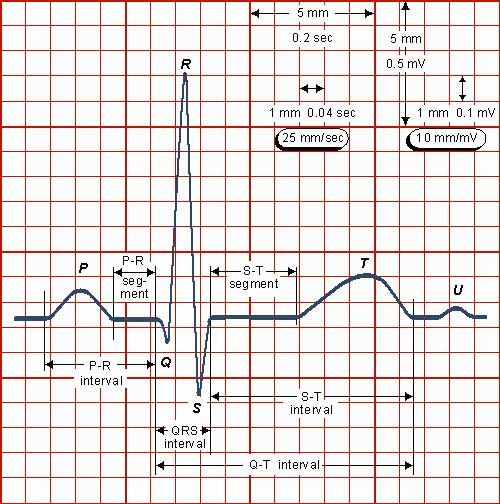 Ecg Reading | ... an ECG printout, let's focus on a single beat from a single electrode: