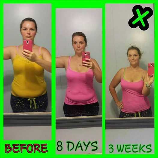 Do anti anxiety pills make you lose weight picture 30