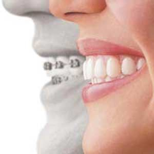 """""""nvisalign""""is the nearly invisible way to straighten teeth.   Using multiple sets of custom-made clear plastic aligners, teeth can be manoeuvered to create your unique perfect smile."""