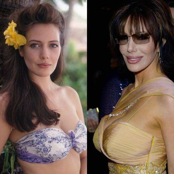 Star rifatte (MALE): 8 volte in cui la chirurgia plastica ha devastato un viso splendido | ClioMakeUp Blog | Bloglovin'