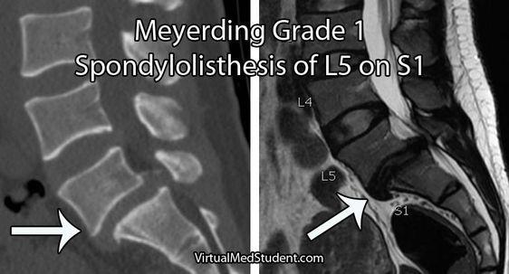 spondylolithesis in