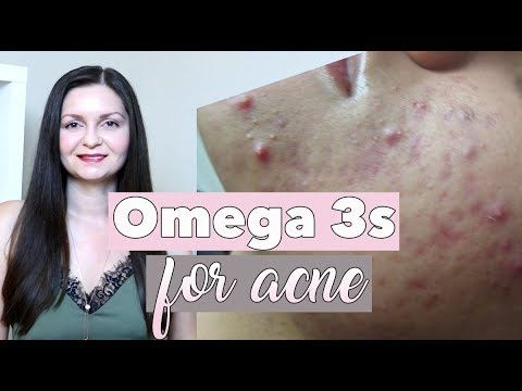 omega 3 acnee)