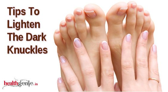 10 Home Remedies To Whiten Dark Fingers And Toes