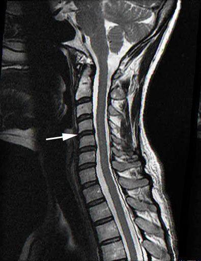 Normal Cervical Spine Mri Mri Scans Pinterest