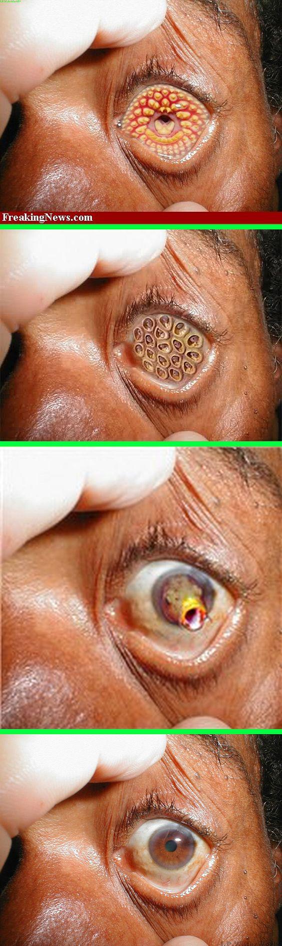 Image Gallery lamprey disease