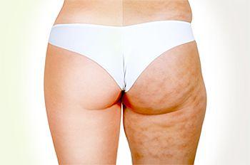 A Celulite não é um problema que pode ser resolvido apenas com Cosmético porque não é um problema cosmético e sim um problema de saúde.São alterações hormonais, circulatórias e principalmente nutricionais.