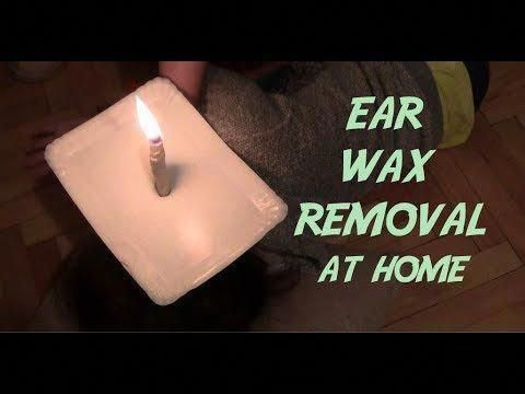 How To Removing Ear Wax With Candles Removeeczema Ear Wax