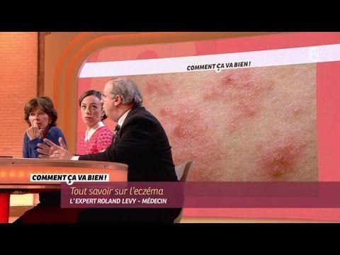 Sante Tout Savoir Sur L Eczéma Ccvb Youtube